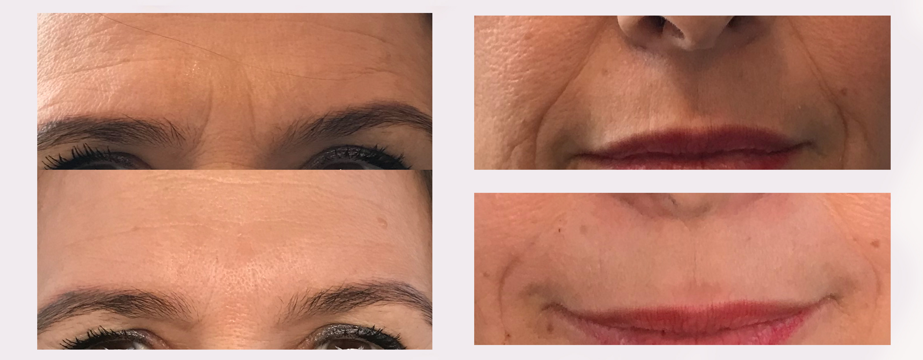 Faltenunterspritzung bei Oniro Kosmetik, Resultat direkt nach der Behandlung. Bild1 Zornesfalten & Stirnfalten. Bild 2: Marionettenfalten und Lippenfalten, keine Lippenauffüllung